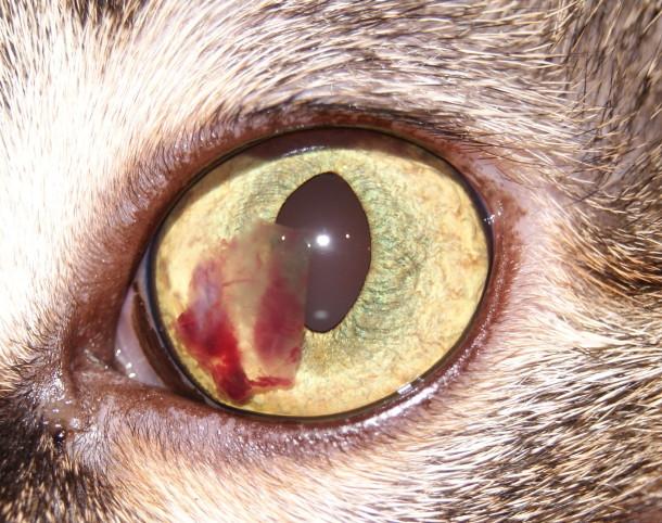гифема глаза лечение